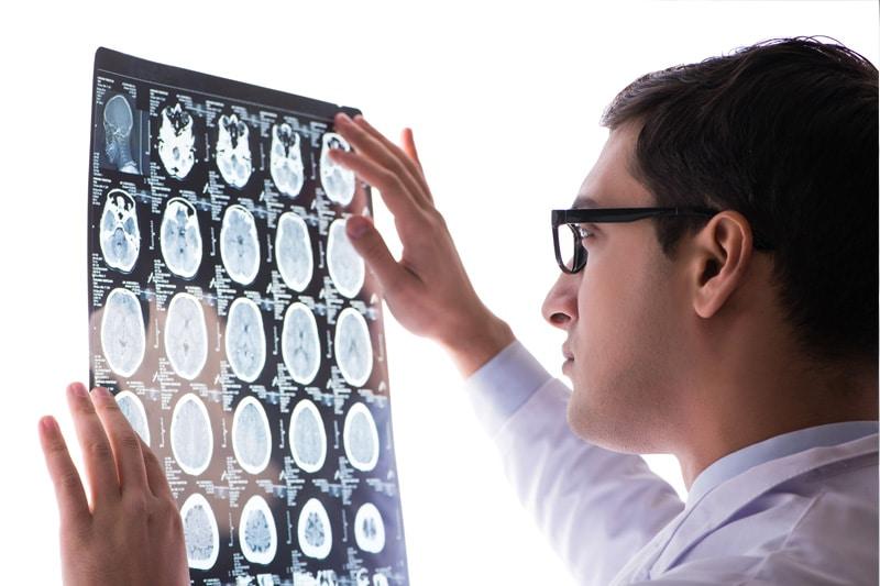 neurological services