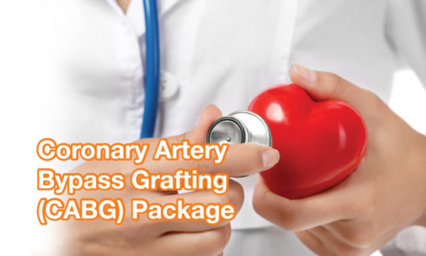 Coronary Artery Bypass Grafting (CABG) Package